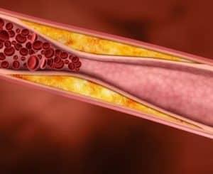 Cholesterin senken mit Hagebuttenpulver